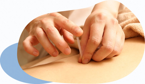 鍼灸イメージ画像